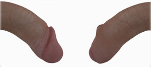 The Physics Cock (aka The P) in Second Life shown both with and without foreskin (cut and uncut).